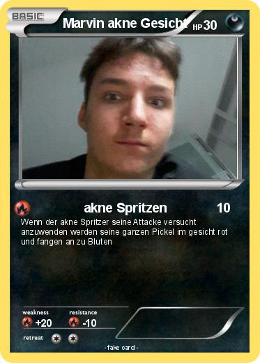Pokemon Marvin Akne Gesicht